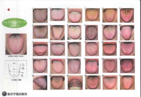 舌 診 写真